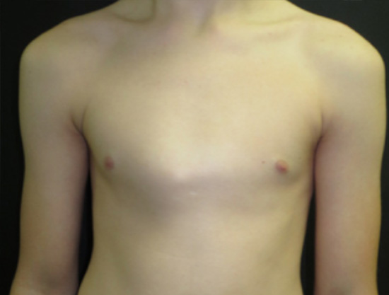Pectus carinatum in a 14 year old boy. It developed during a rapid growth spurt over a year