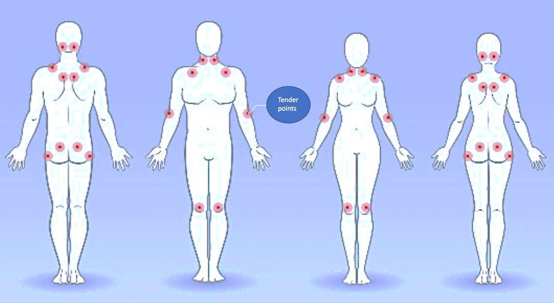 Fibromyalgia and the associated paired tender points